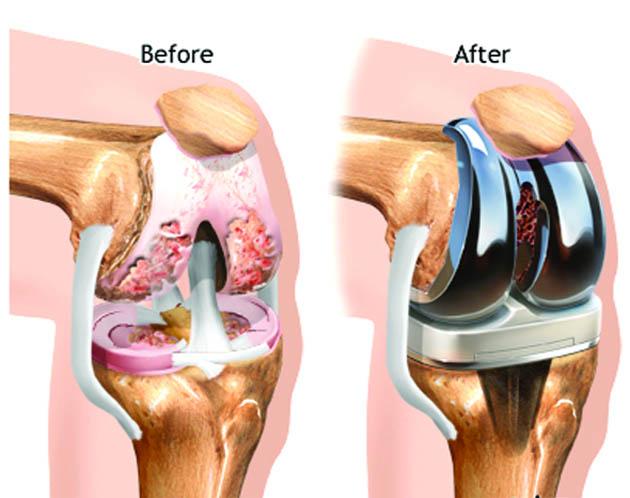 artróza kolene operace